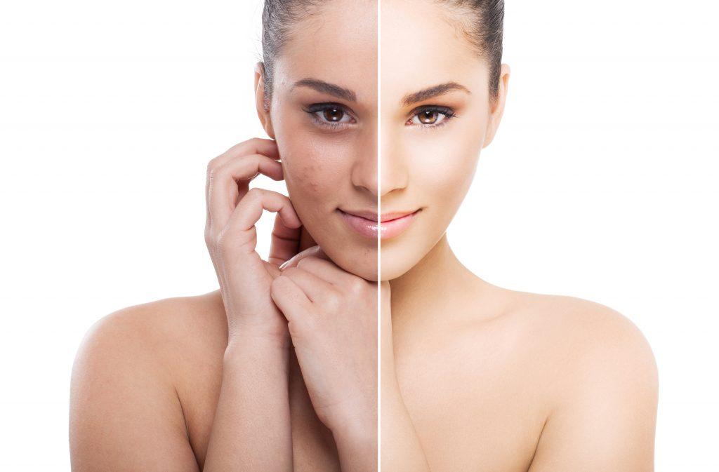 Pielęgnacja twarzy ZŁUSZCZANIE 1024x673 Pakiet zabiegów podstawowych z peelingiem chemicznym 5 + 1