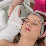 6 HIFU LIFTIN BEZ SKALPELA Piekne Cialo 4858 150x150 Jak odmłodzić twarz o 10 lat bez cierpienia, skalpela i rekonwalescencji