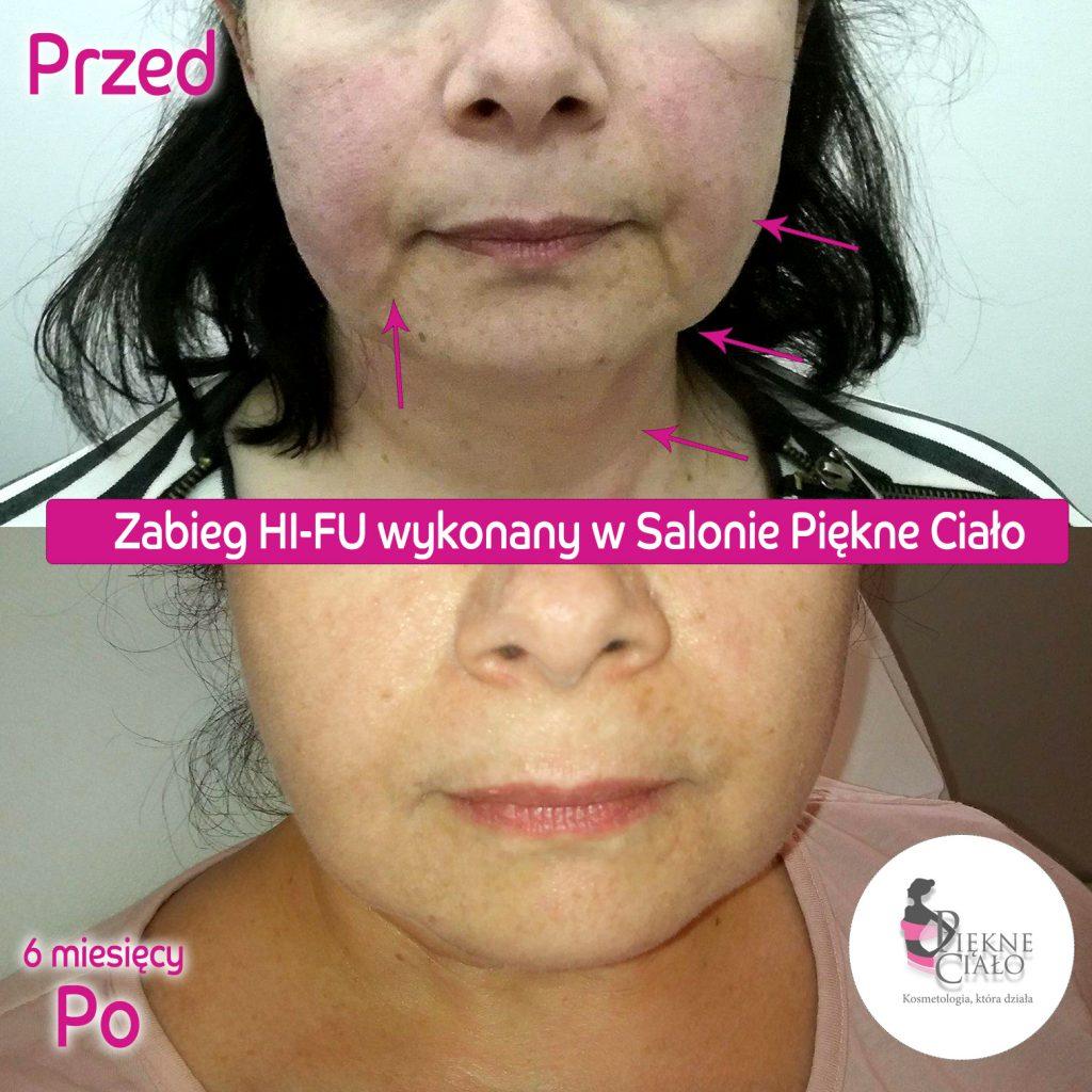 Metamorfoza HIFU 1024x1024 Jak odmłodzić twarz o 10 lat bez cierpienia, skalpela i rekonwalescencji