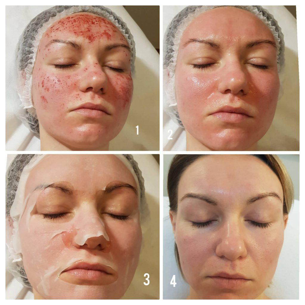 52583899 2107835792628242 2325539102167924736 o 1024x1024 Larens BIO Renew Tissue Face Mask, domowe studio urody!