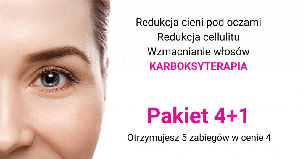 3 1024x536 Promocje CZERWCA!